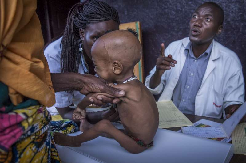 Nurses at the Batouri Hospital nutrition centre weigh a severely malnourished child before feeding time. The infant has suffered during the long journey in the bush.