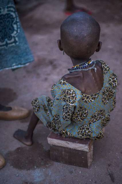 A severely malnourished child, all skin and bones, sits on a makeshift chair at the nutrition centre in Batouri.