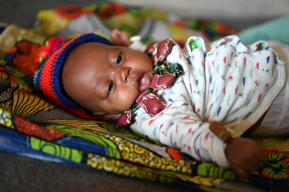 At Gado refugee site, home to 23,000 Central African refugees, a baby born weighing just 0.7 kilograms has reached a stable weight of 3 kilograms thanks to the Kangaroo method used by his mother, Abdouraman Dourou.