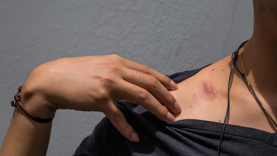 Twenty-one-year-old medical student Lobo* shows the scars of the violence he says he endured during unrest in Nicaragua.
